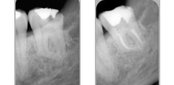 Endodonzia roma