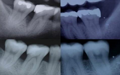 Terapia della parodontite
